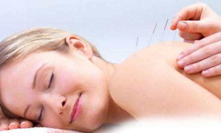 acupuntura primera consulta novedad como es